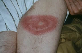 EMPIRE STATE LYME DISEASE ASSOCIATION, INC Lyme disease